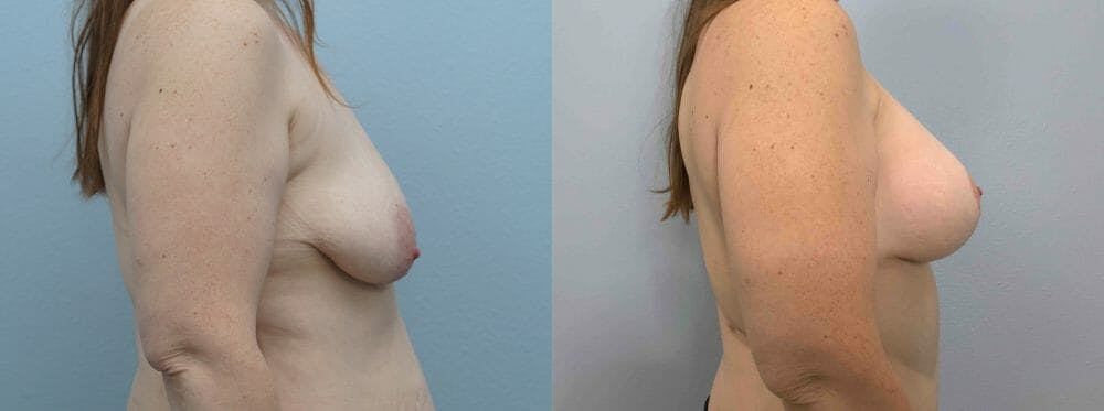 Breast Lift With Implants Gallery - Patient 47434415 - Image 5