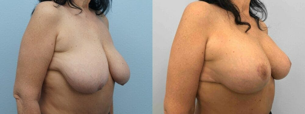 Breast Lift With Implants Gallery - Patient 47434424 - Image 4