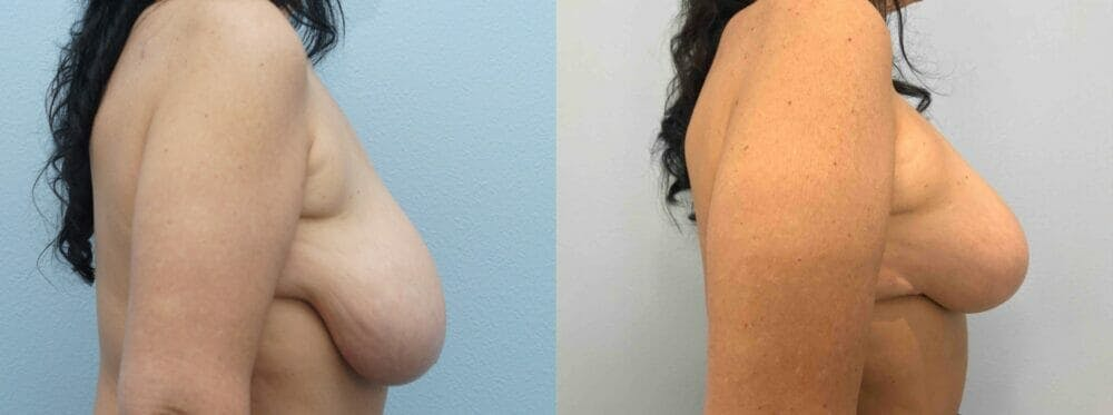 Breast Lift With Implants Gallery - Patient 47434424 - Image 5