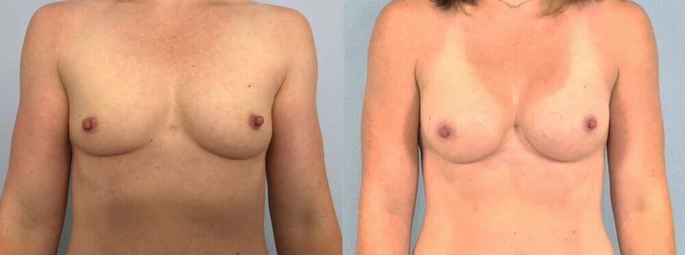 Breast Augmentation Gallery - Patient 48813358 - Image 1