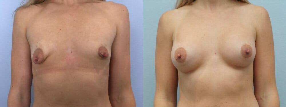 Breast Augmentation Gallery - Patient 48813365 - Image 1