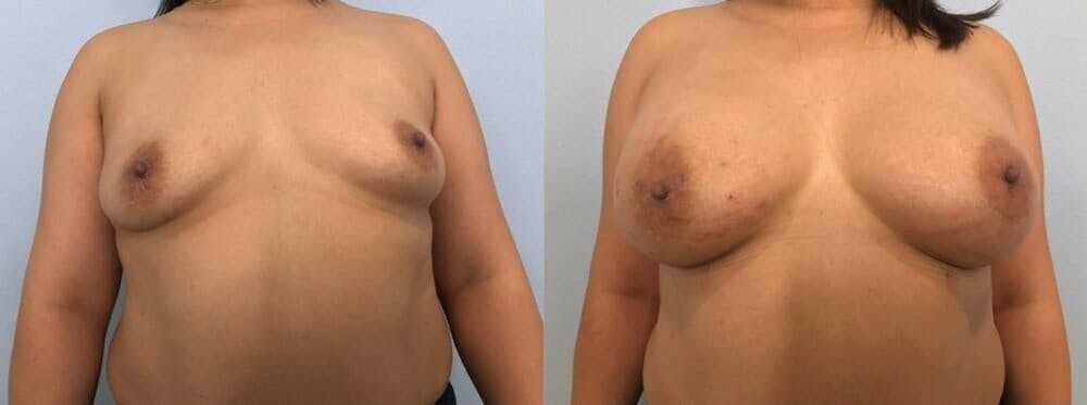 Breast Augmentation Gallery - Patient 48813374 - Image 1