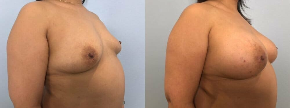 Breast Augmentation Gallery - Patient 48813374 - Image 2
