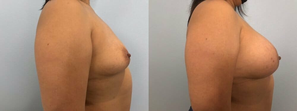 Breast Augmentation Gallery - Patient 48813374 - Image 3