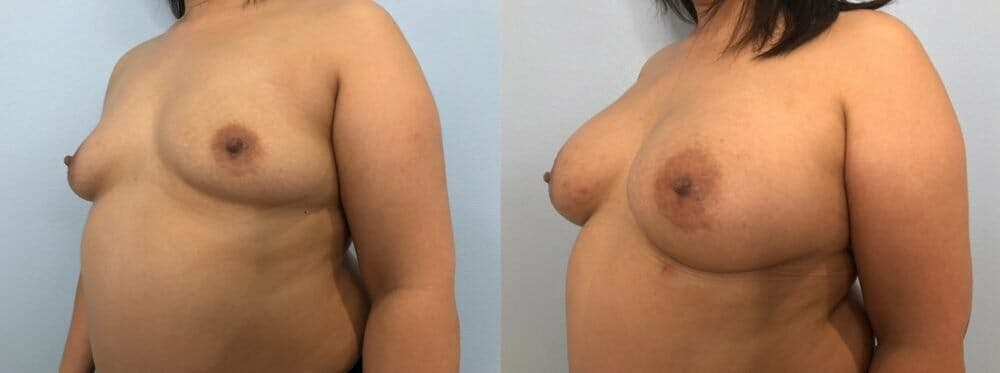 Breast Augmentation Gallery - Patient 48813374 - Image 4