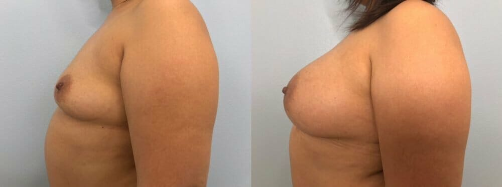 Breast Augmentation Gallery - Patient 48813374 - Image 5