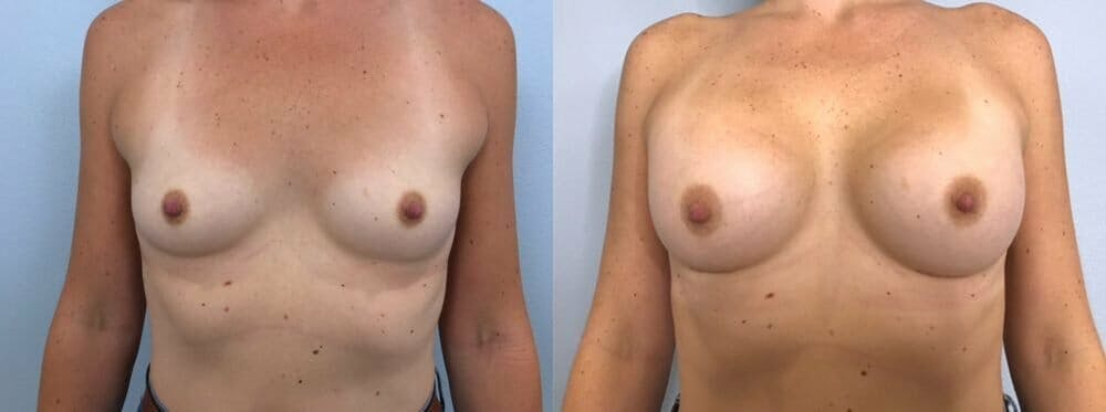 Breast Augmentation Gallery - Patient 48813387 - Image 1