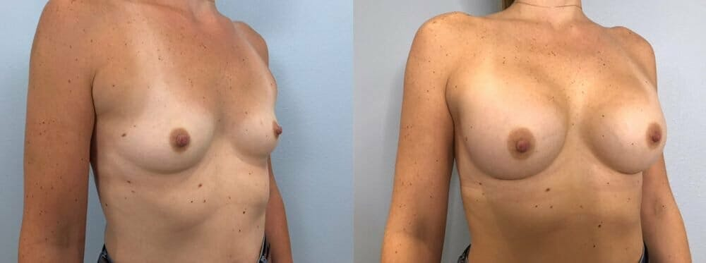 Breast Augmentation Gallery - Patient 48813387 - Image 2