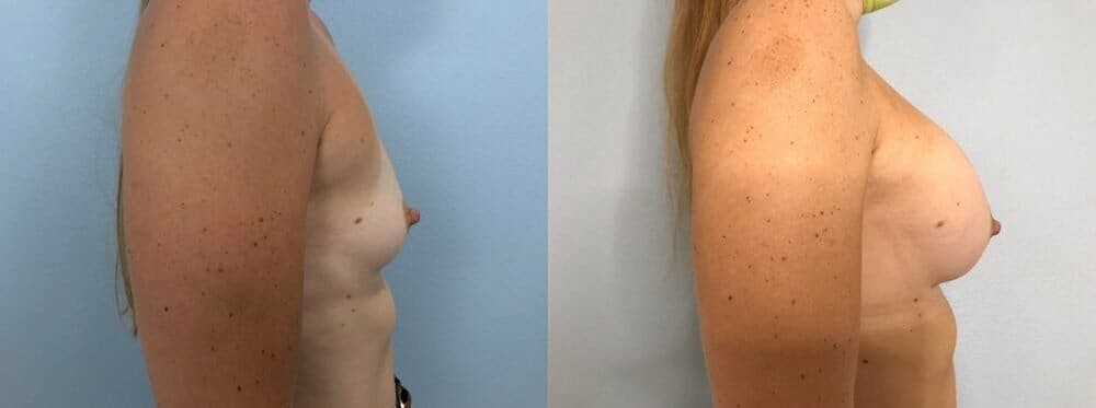 Breast Augmentation Gallery - Patient 48813387 - Image 3