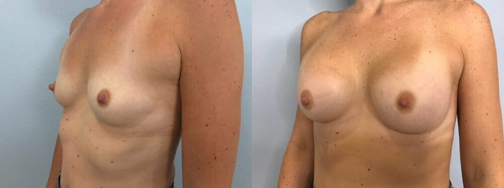 Breast Augmentation Gallery - Patient 48813387 - Image 4
