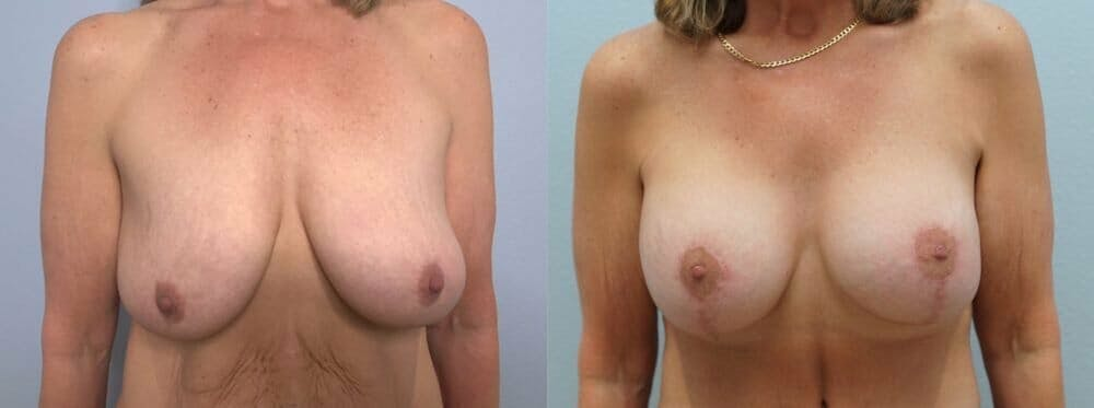 Breast Lift With Implants Gallery - Patient 48813406 - Image 1