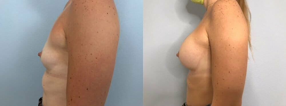 Breast Augmentation Gallery - Patient 48813387 - Image 5