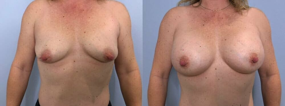 Breast Augmentation Gallery - Patient 48813397 - Image 1