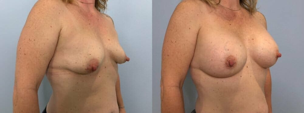 Breast Augmentation Gallery - Patient 48813397 - Image 2