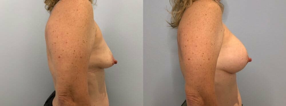 Breast Augmentation Gallery - Patient 48813397 - Image 3