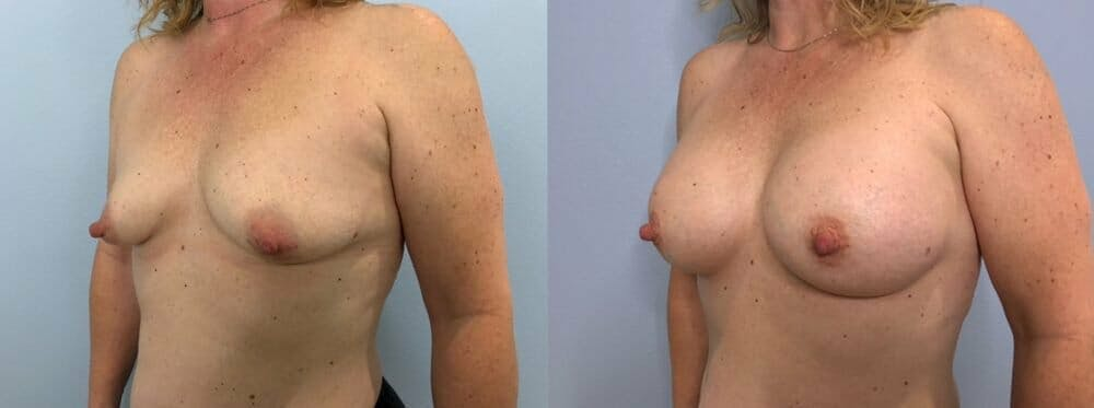 Breast Augmentation Gallery - Patient 48813397 - Image 4