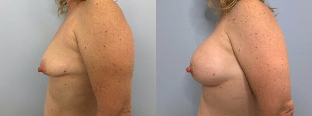 Breast Augmentation Gallery - Patient 48813397 - Image 5
