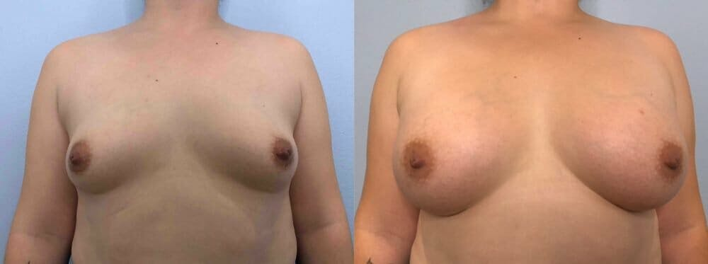 Breast Augmentation Gallery - Patient 48813402 - Image 1