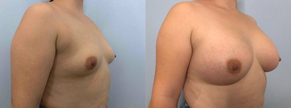 Breast Augmentation Gallery - Patient 48813402 - Image 2