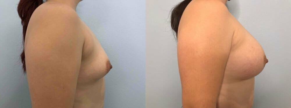 Breast Augmentation Gallery - Patient 48813402 - Image 3