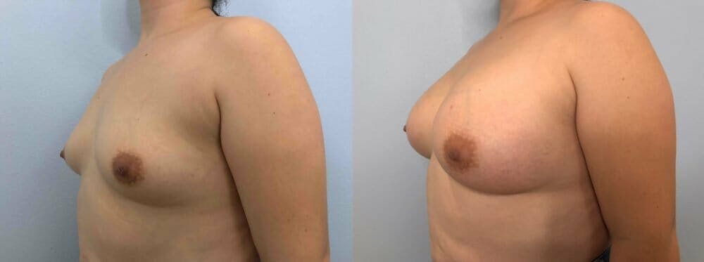 Breast Augmentation Gallery - Patient 48813402 - Image 4