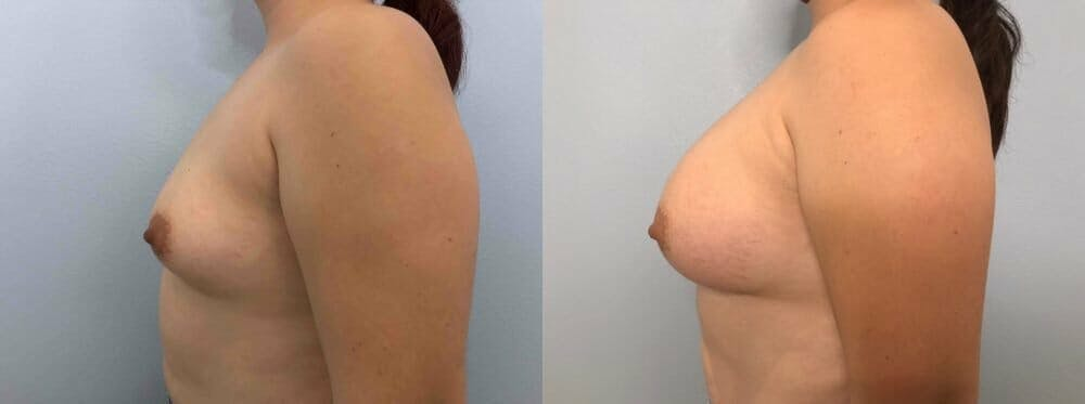 Breast Augmentation Gallery - Patient 48813402 - Image 5