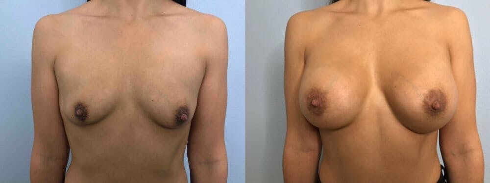 Breast Augmentation Gallery - Patient 48813410 - Image 1