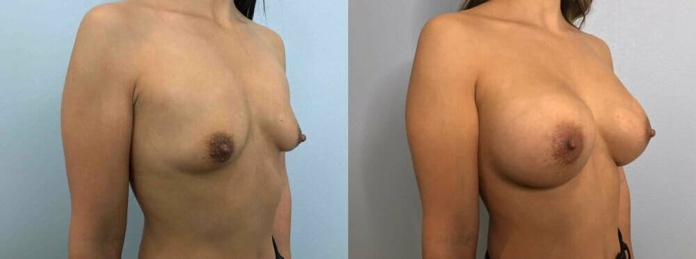 Breast Augmentation Gallery - Patient 48813410 - Image 2