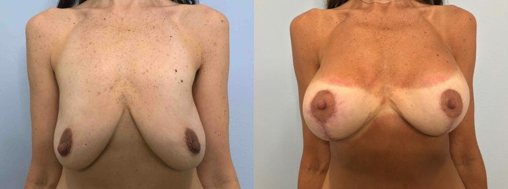 Breast Lift With Implants Gallery - Patient 48813411 - Image 1