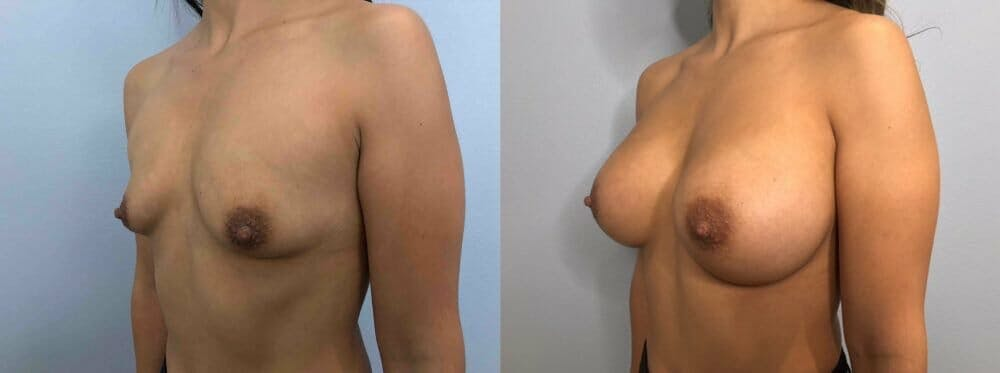 Breast Augmentation Gallery - Patient 48813410 - Image 4