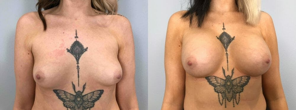Breast Augmentation Gallery - Patient 48813417 - Image 1