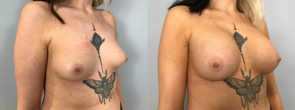 Breast Augmentation Gallery - Patient 48813417 - Image 2