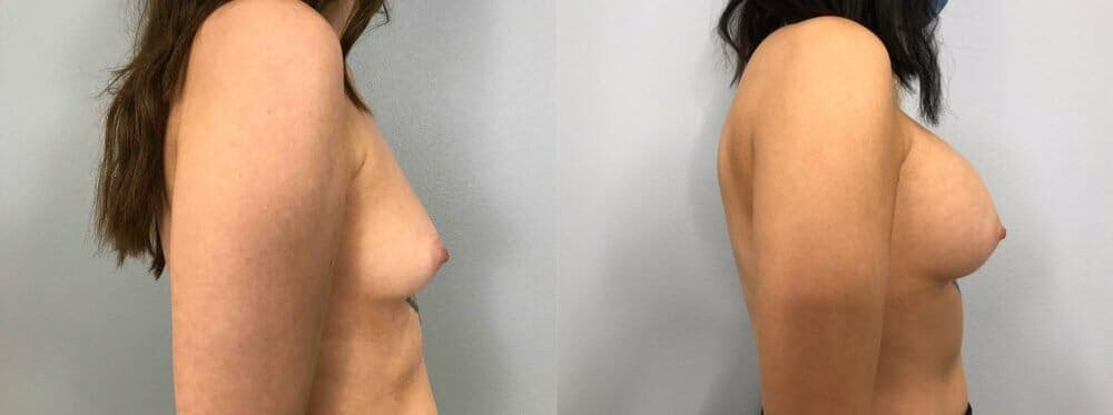 Breast Augmentation Gallery - Patient 48813417 - Image 3