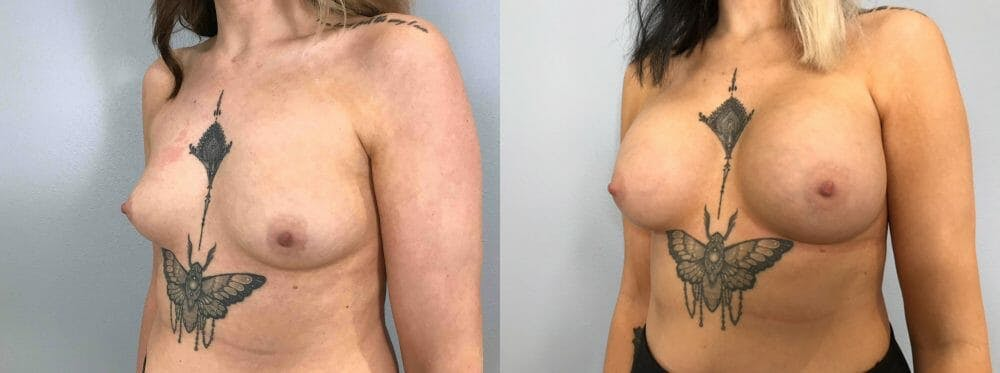 Breast Augmentation Gallery - Patient 48813417 - Image 4