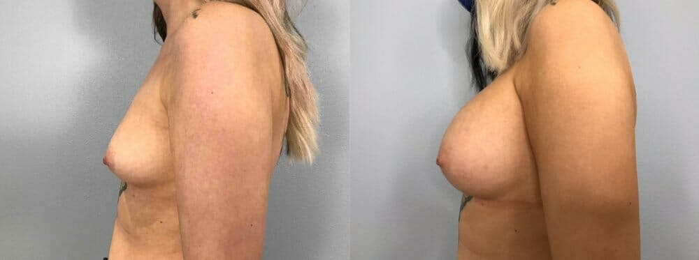 Breast Augmentation Gallery - Patient 48813417 - Image 5