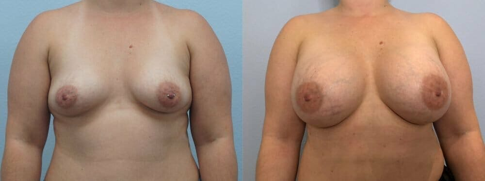 Breast Augmentation Gallery - Patient 48813423 - Image 1