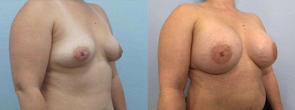 Breast Augmentation Gallery - Patient 48813423 - Image 2
