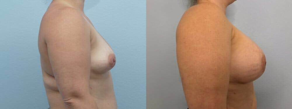 Breast Augmentation Gallery - Patient 48813423 - Image 3