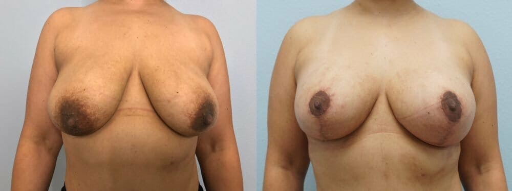 Breast Lift With Implants Gallery - Patient 48813434 - Image 1