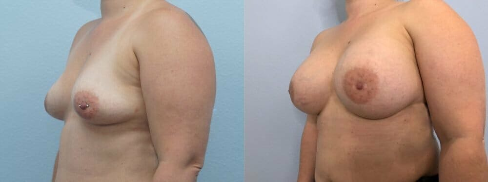 Breast Augmentation Gallery - Patient 48813423 - Image 4