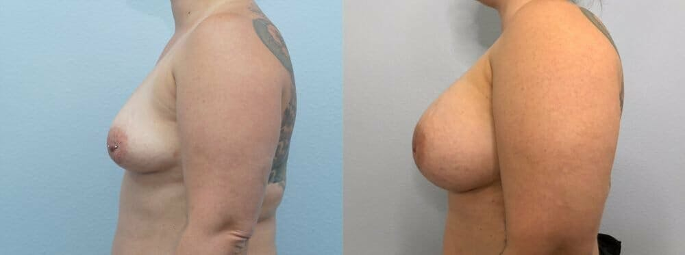 Breast Augmentation Gallery - Patient 48813423 - Image 5