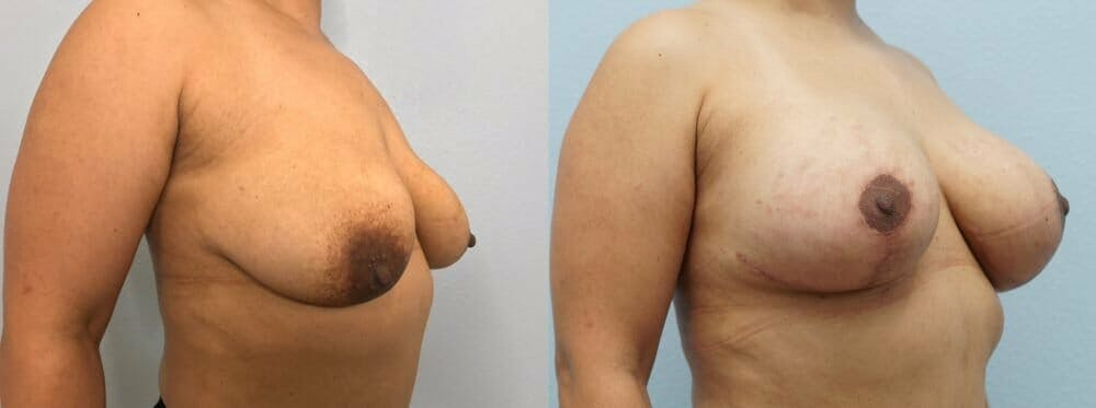 Breast Lift With Implants Gallery - Patient 48813434 - Image 2