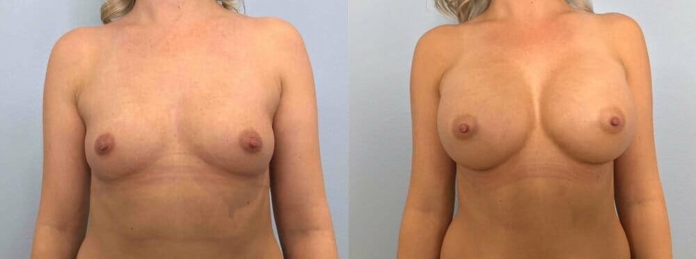 Breast Augmentation Gallery - Patient 48813444 - Image 1