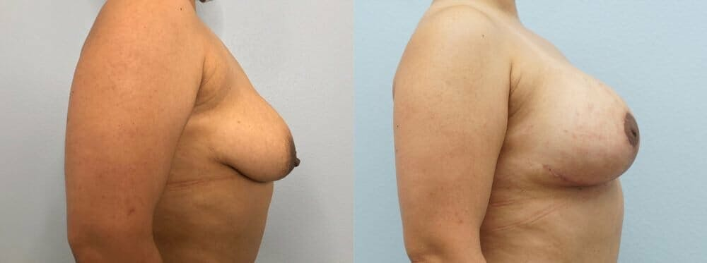 Breast Lift With Implants Gallery - Patient 48813434 - Image 3