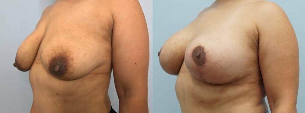Breast Lift With Implants Gallery - Patient 48813434 - Image 4