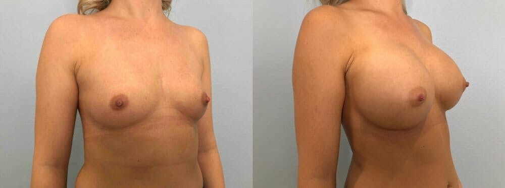 Breast Augmentation Gallery - Patient 48813444 - Image 2