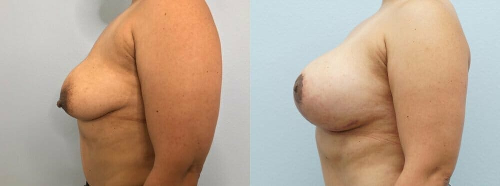 Breast Lift With Implants Gallery - Patient 48813434 - Image 5