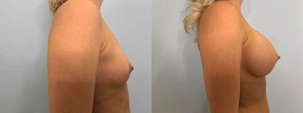 Breast Augmentation Gallery - Patient 48813444 - Image 3
