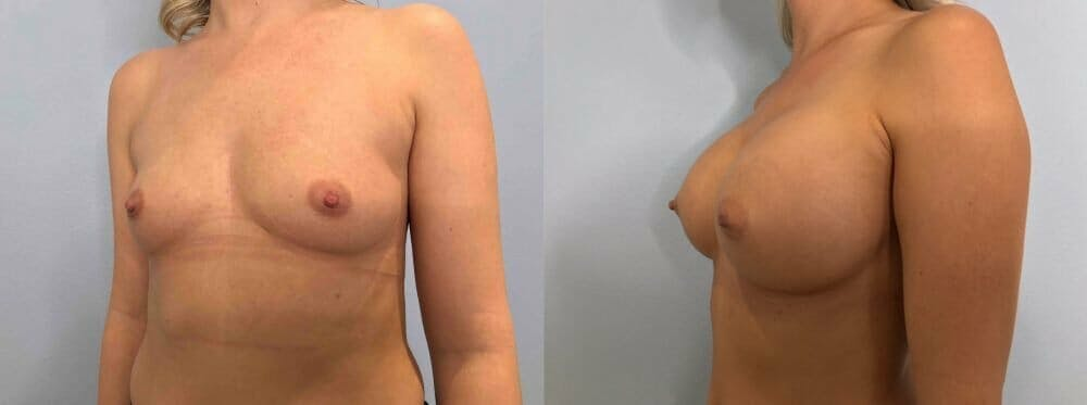 Breast Augmentation Gallery - Patient 48813444 - Image 4