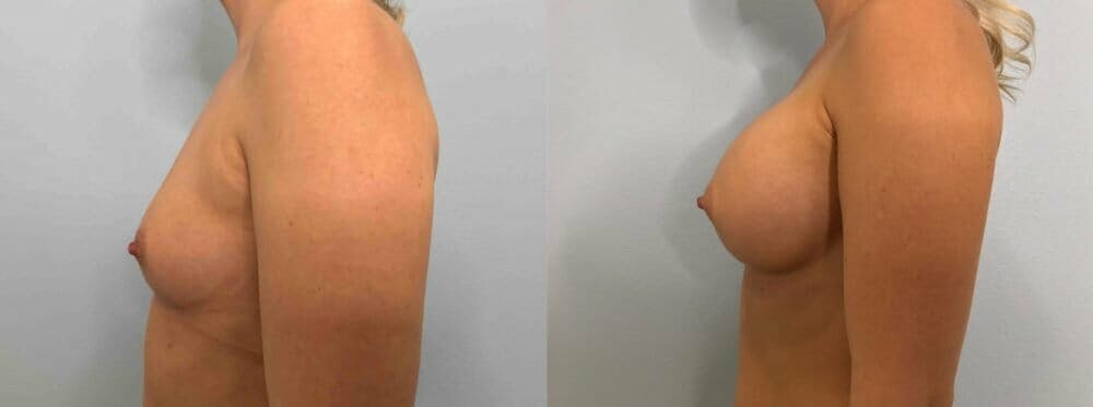 Breast Augmentation Gallery - Patient 48813444 - Image 5